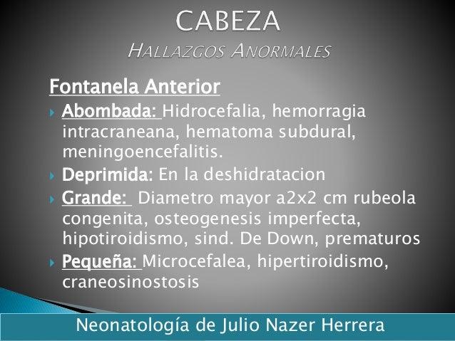 Fontanela Anterior  Abombada: Hidrocefalia, hemorragia intracraneana, hematoma subdural, meningoencefalitis.  Deprimida:...