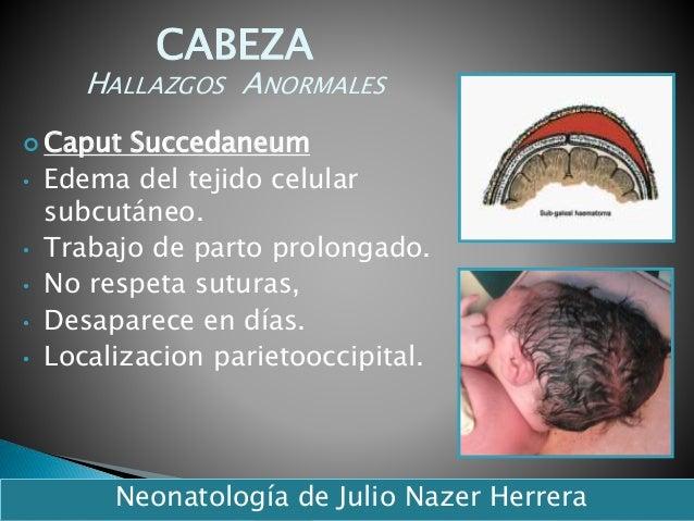  Caput Succedaneum • Edema del tejido celular subcutáneo. • Trabajo de parto prolongado. • No respeta suturas, • Desapare...