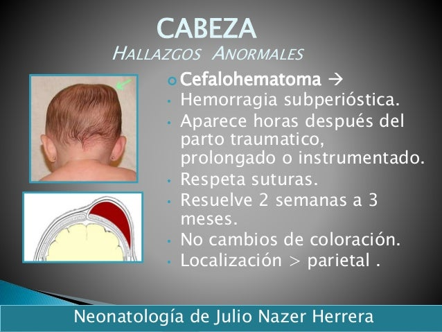  Cefalohematoma  • Hemorragia subperióstica. • Aparece horas después del parto traumatico, prolongado o instrumentado. •...