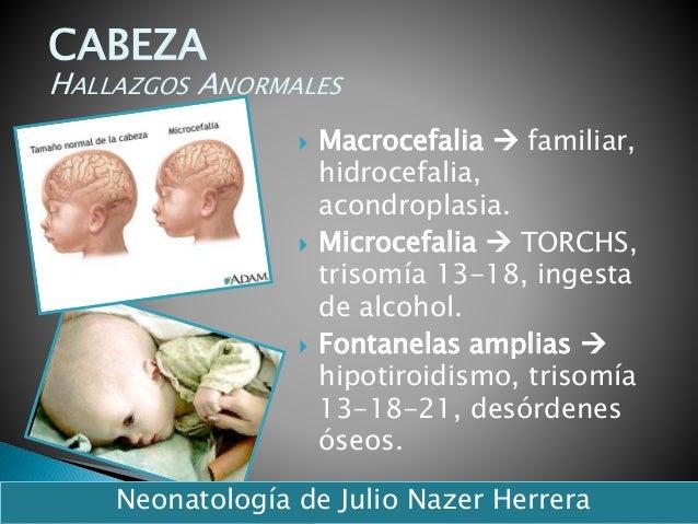 Macrocefalia  familiar, hidrocefalia, acondroplasia.  Microcefalia  TORCHS, trisomía 13-18, ingesta de alcohol.  Fon...
