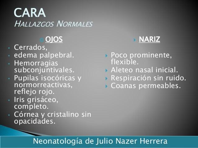  OJOS • Cerrados, • edema palpebral. • Hemorragias subconjuntivales. • Pupilas isocóricas y normorreactivas, reflejo rojo...
