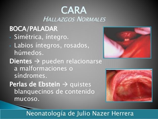 BOCA/PALADAR • Simétrica, íntegro. • Labios íntegros, rosados, húmedos. Dientes  pueden relacionarse a malformaciones o s...