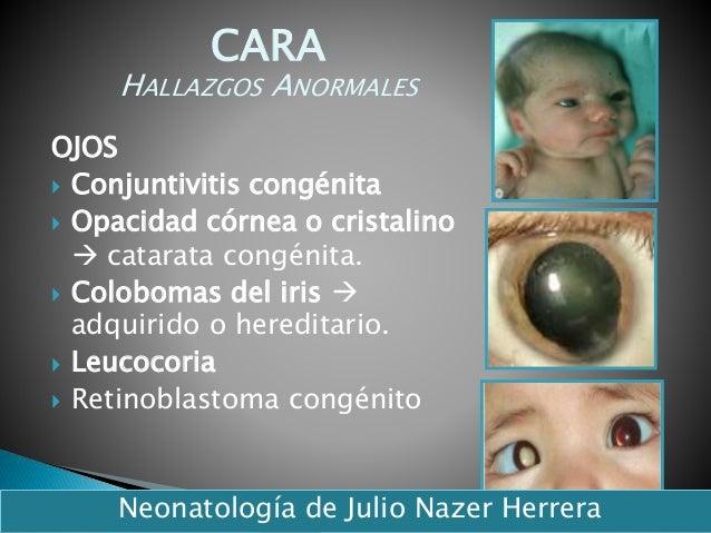 OJOS  Conjuntivitis congénita  Opacidad córnea o cristalino  catarata congénita.  Colobomas del iris  adquirido o her...