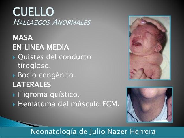MASA EN LINEA MEDIA  Quistes del conducto tirogloso.  Bocio congénito. LATERALES  Higroma quístico.  Hematoma del músc...