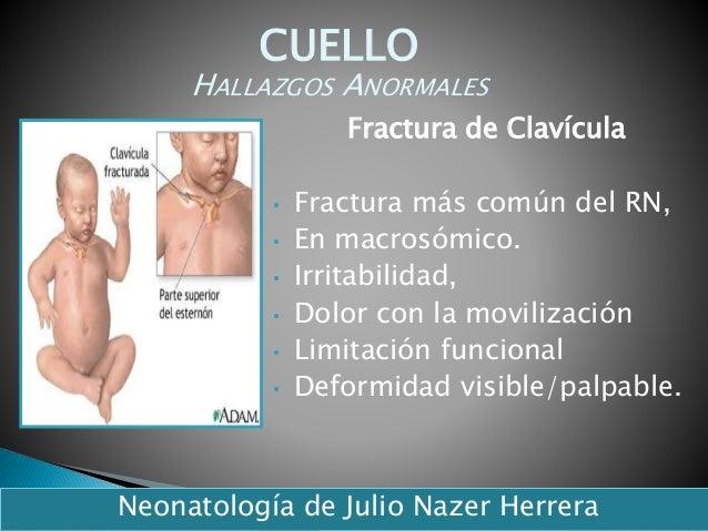 Fractura de Clavícula • Fractura más común del RN, • En macrosómico. • Irritabilidad, • Dolor con la movilización • Limita...