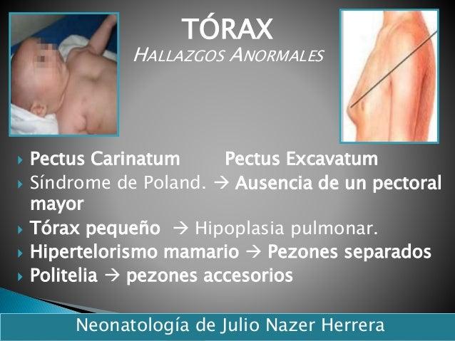 Pectus Carinatum Pectus Excavatum  Síndrome de Poland.  Ausencia de un pectoral mayor  Tórax pequeño  Hipoplasia pul...