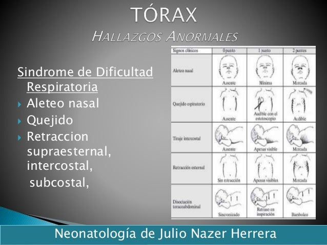 Sindrome de Dificultad Respiratoria  Aleteo nasal  Quejido  Retraccion supraesternal, intercostal, subcostal, Neonatolo...