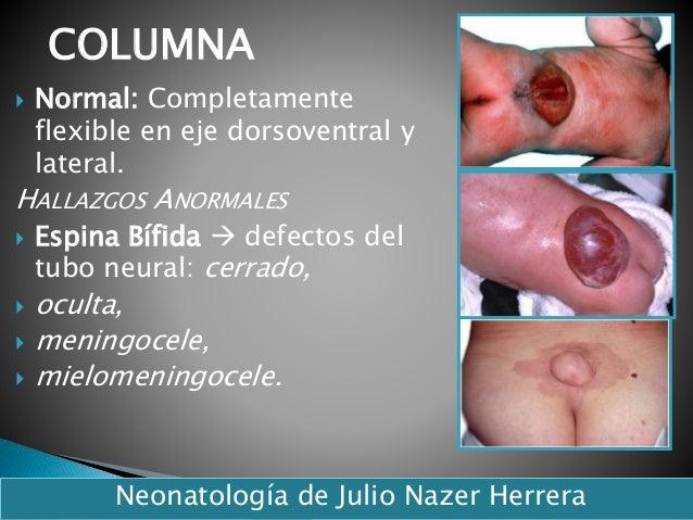 Normal: Completamente flexible en eje dorsoventral y lateral. HALLAZGOS ANORMALES  Espina Bífida  defectos del tubo ne...