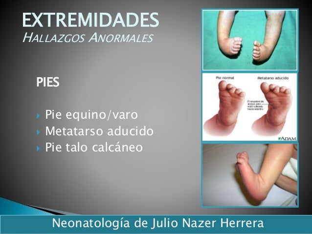 PIES  Pie equino/varo  Metatarso aducido  Pie talo calcáneo 40 EXTREMIDADES HALLAZGOS ANORMALES Neonatología de Julio N...