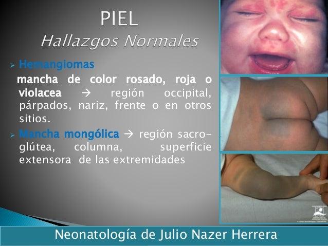  Hemangiomas mancha de color rosado, roja o violacea  región occipital, párpados, nariz, frente o en otros sitios.  Man...
