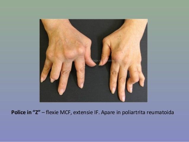 Artrita (poliartrita) reumatoidă