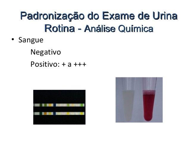 Exame urina leucocitos