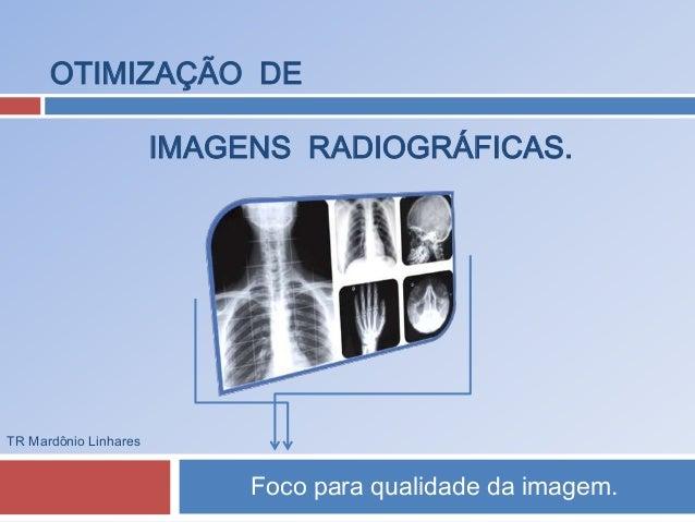 OTIMIZAÇÃO DE  IMAGENS RADIOGRÁFICAS.  Foco para qualidade da imagem.  TR Mardônio Linhares