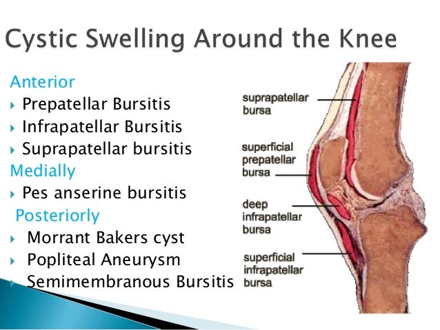 knee anatomy suprapatellar bursa choice image