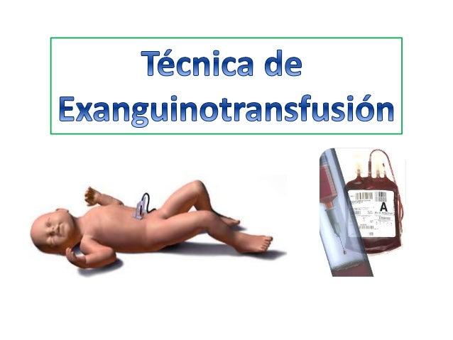 Es una técnica que se utiliza para contrarrestar los efectos de la ictericia severa o cambios de la sangre debido a varias...