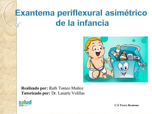 Realizado por: Ruth Tomeo MuñozTutorizado por: Dr. Lasarte VelillasC.S Torre Ramona