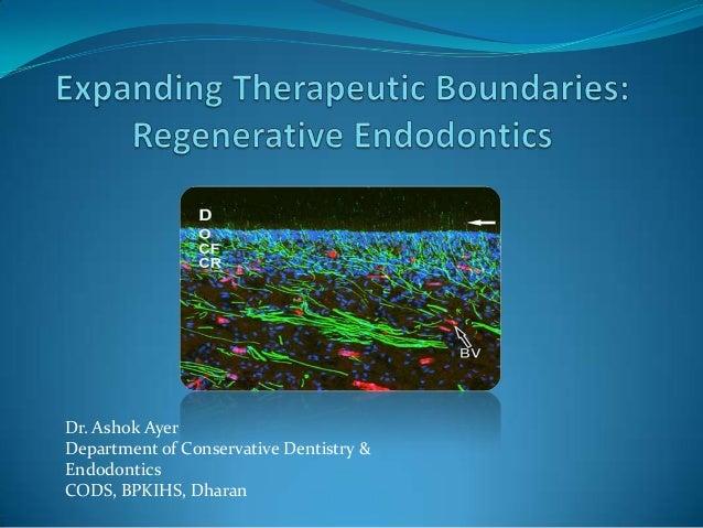 Dr. Ashok Ayer Department of Conservative Dentistry & Endodontics CODS, BPKIHS, Dharan