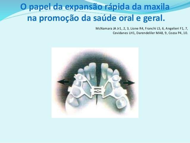 O papel da expansão rápida da maxila na promoção da saúde oral e geral. McNamara JA Jr1, 2, 3, Lione R4, Franchi L5, 6, An...