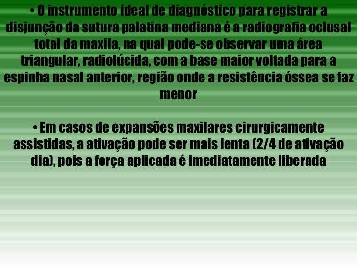 •  O instrumento ideal de diagnóstico para registrar a disjunção da sutura palatina mediana é a radiografia oclusal total ...