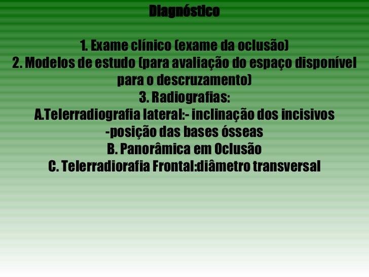 <ul><li>Diagnóstico </li></ul><ul><li>1. Exame clínico (exame da oclusão) </li></ul><ul><li>2. Modelos de estudo (para ava...