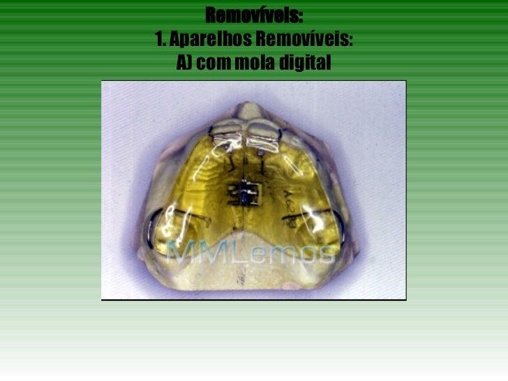 Removíveis: 1. Aparelhos Removíveis: A) com mola digital