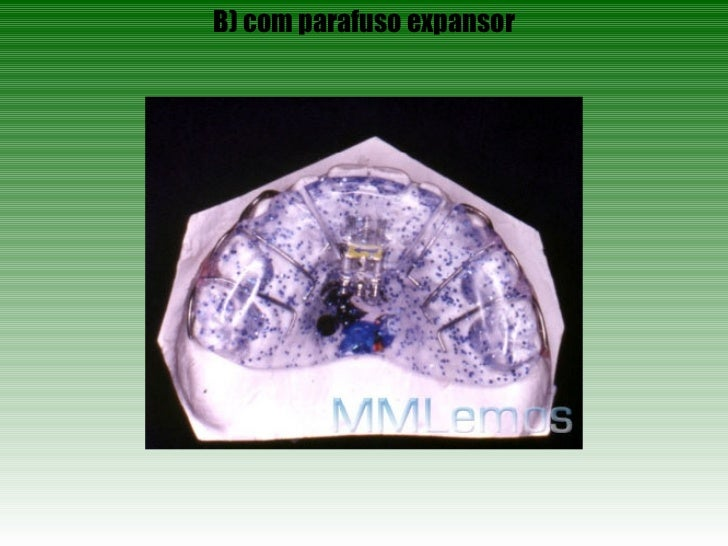 B) com parafuso expansor
