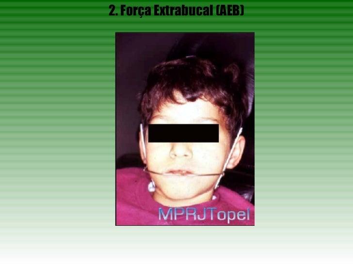 2. Força Extrabucal (AEB)