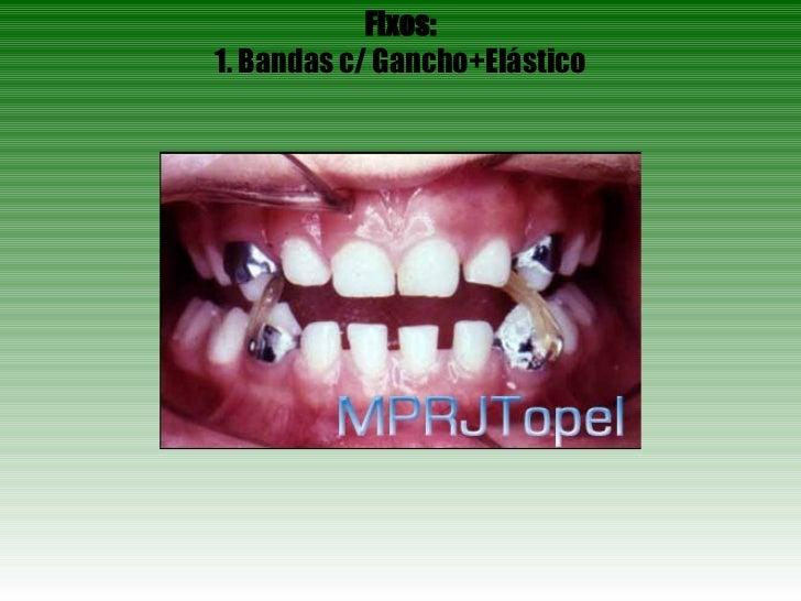 Fixos: 1. Bandas c/ Gancho+Elástico