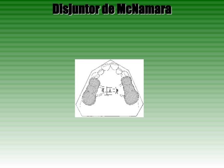 Disjuntor de McNamara