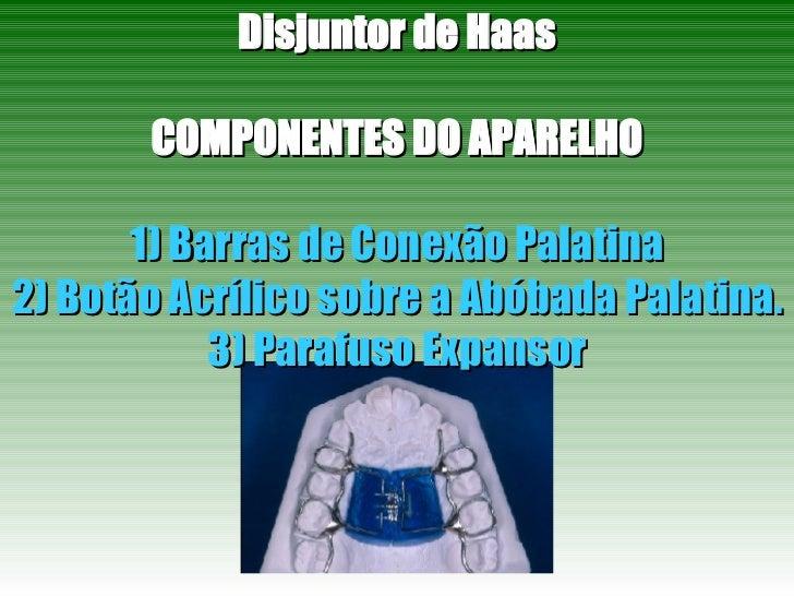 Disjuntor de Haas COMPONENTES DO APARELHO 1) Barras de Conexão Palatina 2) Botão Acrílico sobre a Abóbada Palatina. 3) Par...