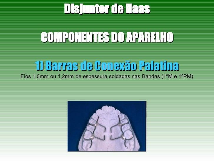 Disjuntor de Haas COMPONENTES DO APARELHO 1) Barras de Conexão Palatina Fios 1,0mm ou 1,2mm de espessura soldadas nas Band...