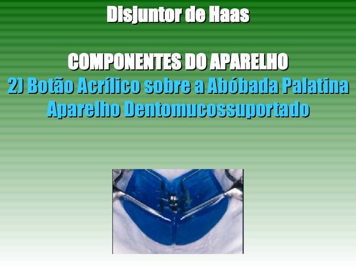 Disjuntor de Haas COMPONENTES DO APARELHO 2) Botão Acrílico sobre a Abóbada Palatina Aparelho Dentomucossuportado