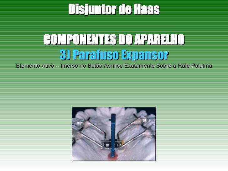 Disjuntor de Haas COMPONENTES DO APARELHO 3) Parafuso Expansor Elemento Ativo – Imerso no Botão Acrílico Exatamente Sobre ...