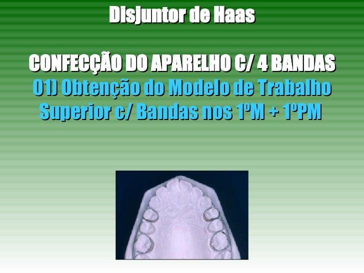 Disjuntor de Haas CONFECÇÃO DO APARELHO C/ 4 BANDAS 01) Obtenção do Modelo de Trabalho Superior c/ Bandas nos 1ºM + 1ºPM