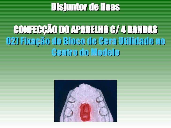 Disjuntor de Haas CONFECÇÃO DO APARELHO C/ 4 BANDAS 02) Fixação do Bloco de Cera Utilidade no Centro do Modelo