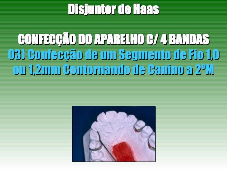 Disjuntor de Haas CONFECÇÃO DO APARELHO C/ 4 BANDAS 03) Confecção de um Segmento de Fio 1,0 ou 1,2mm Contornando de Canino...