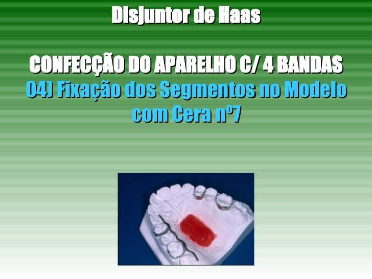 Disjuntor de Haas CONFECÇÃO DO APARELHO C/ 4 BANDAS 04) Fixação dos Segmentos no Modelo com Cera nº7
