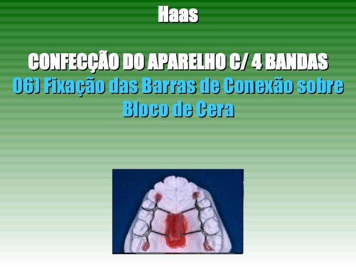 Haas CONFECÇÃO DO APARELHO C/ 4 BANDAS 06) Fixação das Barras de Conexão sobre Bloco de Cera