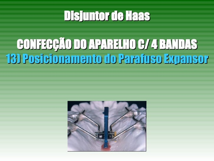 Disjuntor de Haas CONFECÇÃO DO APARELHO C/ 4 BANDAS 13) Posicionamento do Parafuso Expansor