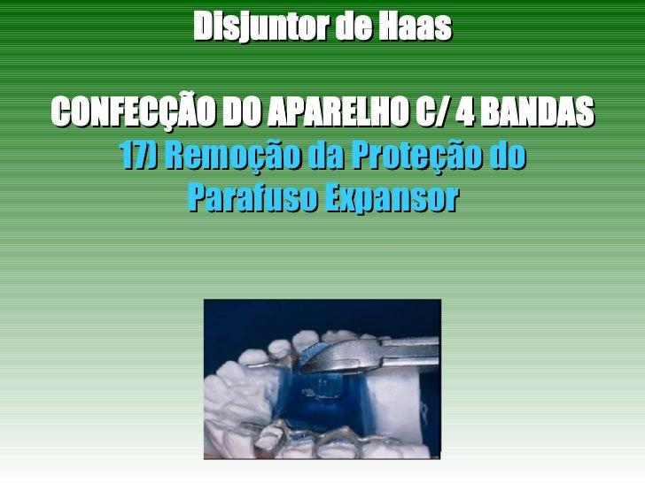 Disjuntor de Haas CONFECÇÃO DO APARELHO C/ 4 BANDAS 17) Remoção da Proteção do Parafuso Expansor