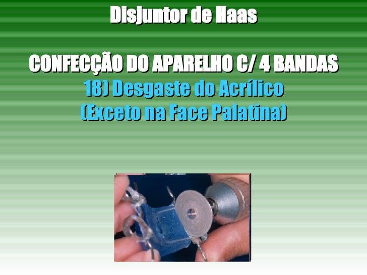 Disjuntor de Haas CONFECÇÃO DO APARELHO C/ 4 BANDAS 18) Desgaste do Acrílico (Exceto na Face Palatina)