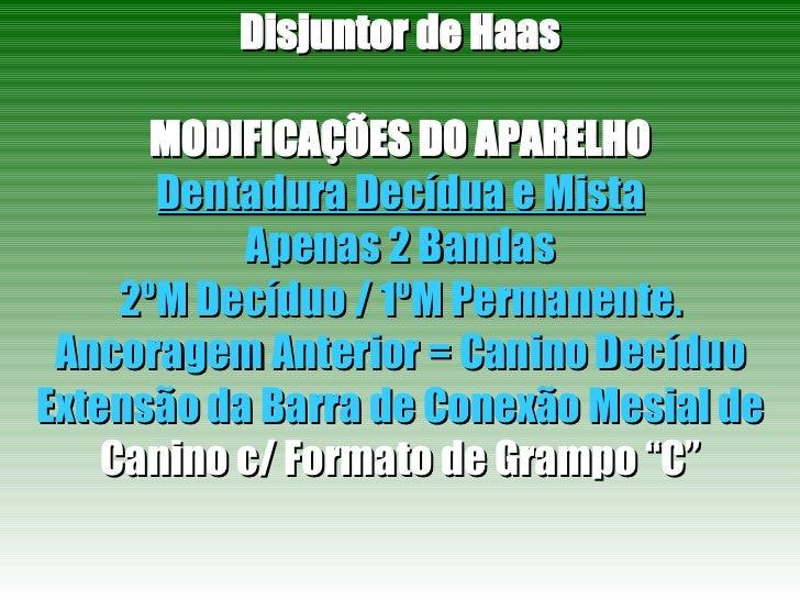 Disjuntor de Haas MODIFICAÇÕES DO APARELHO Dentadura Decídua e Mista Apenas 2 Bandas 2ºM Decíduo / 1ºM Permanente. Ancorag...