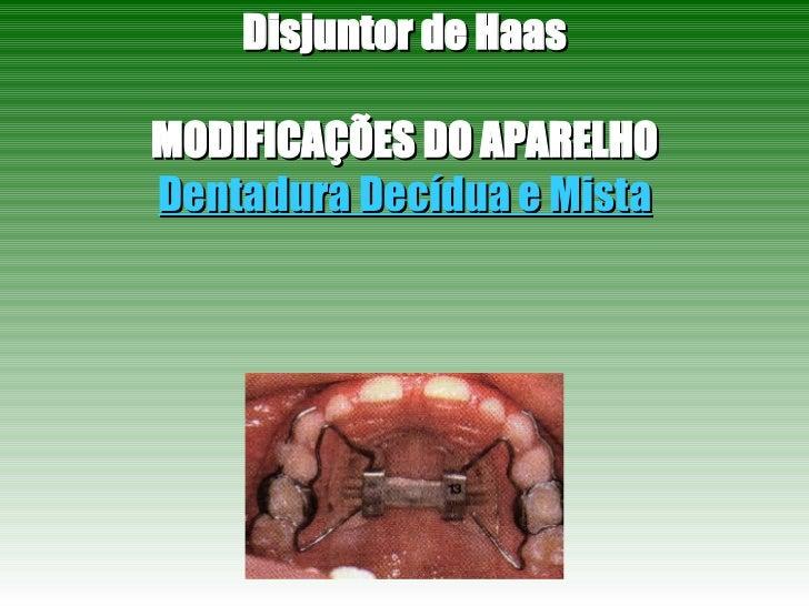 Disjuntor de Haas MODIFICAÇÕES DO APARELHO Dentadura Decídua e Mista