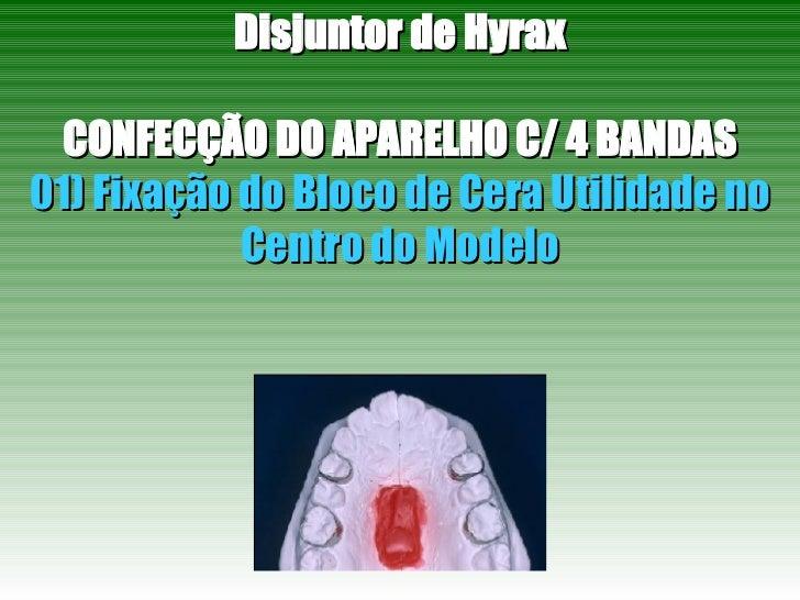 Disjuntor de Hyrax CONFECÇÃO DO APARELHO C/ 4 BANDAS 01) Fixação do Bloco de Cera Utilidade no Centro do Modelo