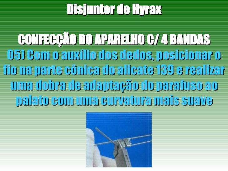 Disjuntor de Hyrax CONFECÇÃO DO APARELHO C/ 4 BANDAS 05) Com o auxílio dos dedos, posicionar o fio na parte cônica do alic...