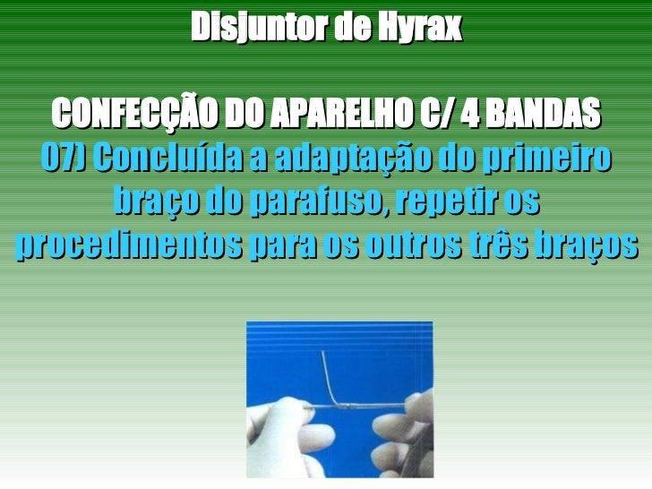 Disjuntor de Hyrax CONFECÇÃO DO APARELHO C/ 4 BANDAS 07) Concluída a adaptação do primeiro braço do parafuso, repetir os p...