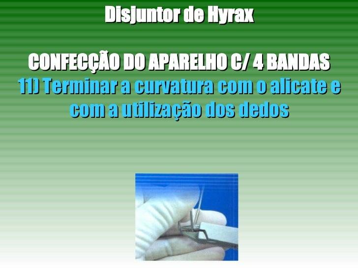 Disjuntor de Hyrax CONFECÇÃO DO APARELHO C/ 4 BANDAS 11) Terminar a curvatura com o alicate e com a utilização dos dedos
