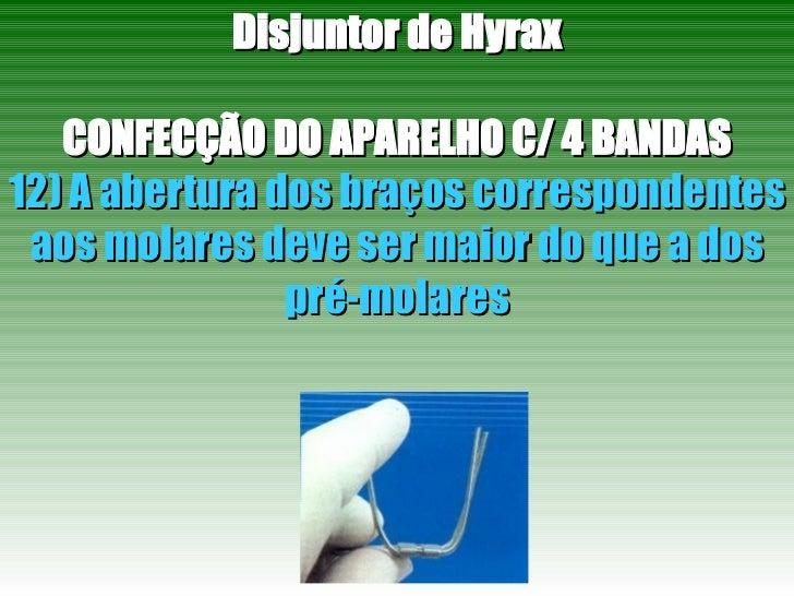 Disjuntor de Hyrax CONFECÇÃO DO APARELHO C/ 4 BANDAS 12) A abertura dos braços correspondentes aos molares deve ser maior ...