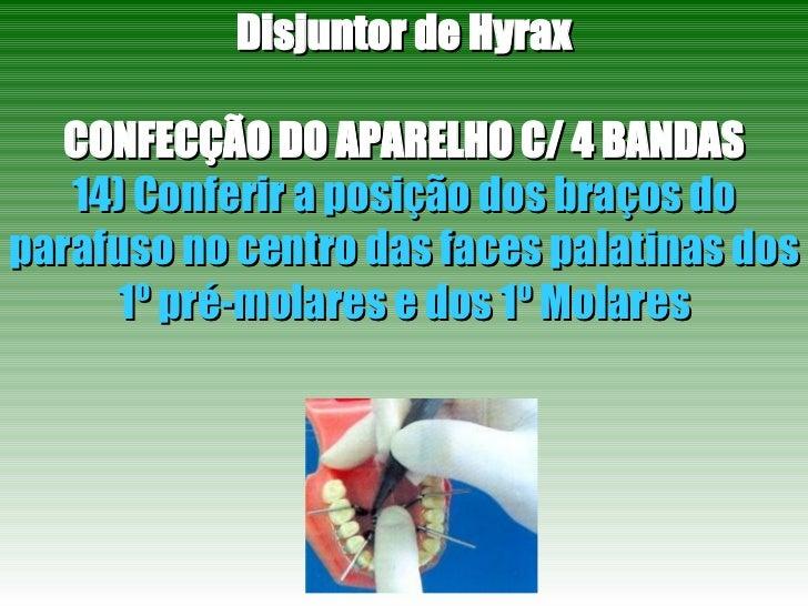 Disjuntor de Hyrax CONFECÇÃO DO APARELHO C/ 4 BANDAS 14) Conferir a posição dos braços do parafuso no centro das faces pal...
