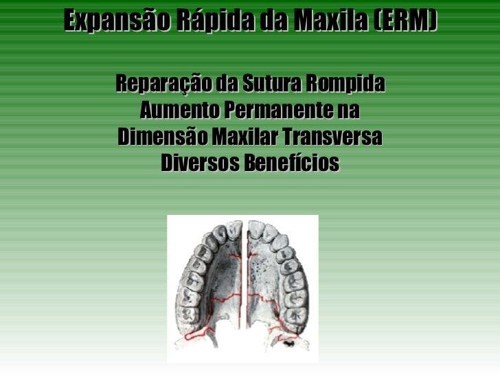 Expansão Rápida da Maxila (ERM) Reparação da Sutura Rompida Aumento Permanente na Dimensão Maxilar Transversa Diversos Ben...